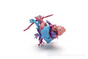 This  full color model is a hear t of a young girl named Jemma with a complex heart defect; the heart was  printed using HP ' s new Jet Fusion 300 / 500 3D printer to help surgeons at Phoenix Children ' s Hospital  prepare, select the best surgical path and explain the procedure to Jemma ' s fami ly. * Credit required as follows: Data courtesy of Phoenix Children ' s Hospital; Heart of Jemma